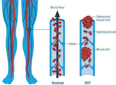 DVT and PE diagram