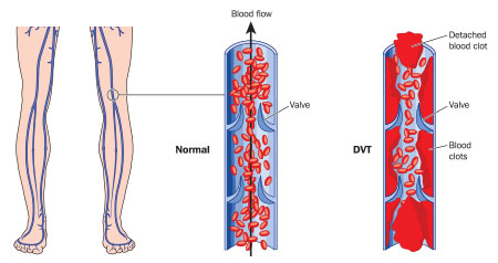 DVT and PE Explained: Symptoms, Risk Factors and Myths